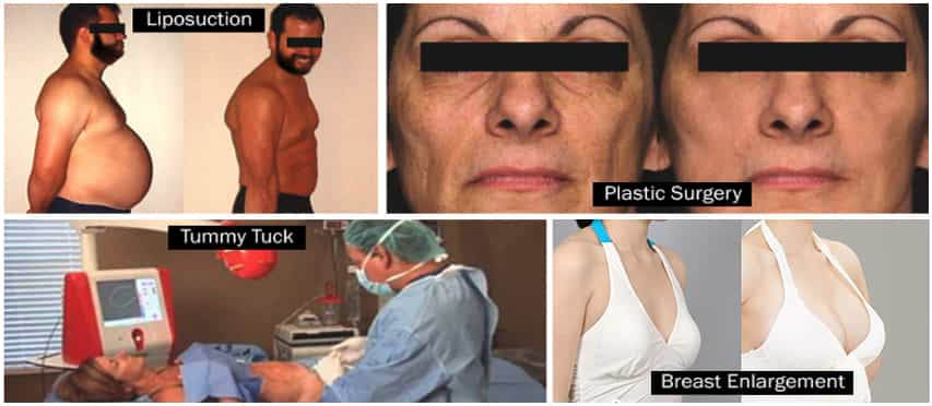 LIPOSUCTION AHMEDABAD