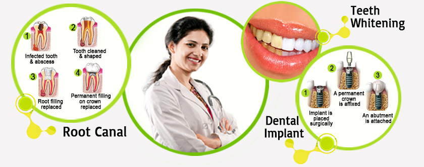 Dental implant Bangalore