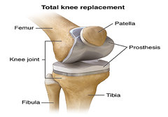 What happens during a knee replacement surgery?