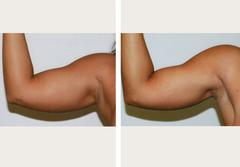 Liposuction in Kolkata