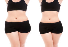 LIPOSUCTION SURGERY IN JAIPUR