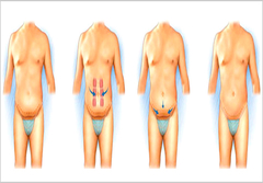 Tummy Tuck  Bangalore